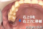 府中市の歯医者 口腔外科専門医 武田歯科の口腔外科事例【歯の移植(右上8→右上7部へ)】治療直後