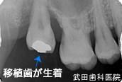 府中市の歯医者 口腔外科専門医 武田歯科の口腔外科事例【歯の移植(右上8→右上7部へ)】治療後レントゲン写真