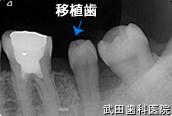 府中市の歯医者 口腔外科専門医 武田歯科の口腔外科事例【歯の移植(右上8→左下7部へ)】治療後