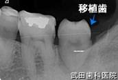 府中市の歯医者 口腔外科専門医 武田歯科の口腔外科事例【歯牙移植(左上8→左下7)】治療後