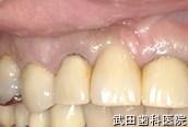 府中市の歯医者 口腔外科専門医 武田歯科の口腔外科事例【歯根のう胞(右上2)】治療前