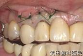 府中市の歯医者 口腔外科専門医 武田歯科の口腔外科事例 武田歯科の口腔外科事例【歯根のう胞(右上2)】治療直後