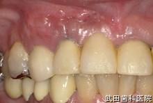 府中市の歯医者 口腔外科専門医 武田歯科の口腔外科事例【歯根のう胞(右上2)】治療4週間後