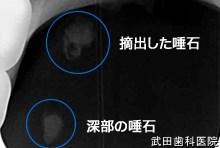 府中市の歯科 口腔外科専門医 武田歯科の口腔外科事例【唾石症】レントゲン写真