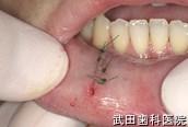 府中市の歯医者 口腔外科専門医 武田歯科の口腔外科事例【右下唇粘液のう胞】治療後