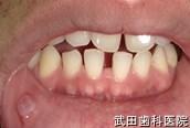 府中市の歯医者 口腔外科専門医 武田歯科の口腔外科事例【右下唇粘液のう胞】術前