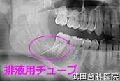 府中市の歯医者 口腔外科専門医 武田歯科の口腔外科事例【歯の移植(左下8→左下7)】治療直後