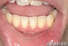 府中市の歯医者 口腔外科専門医 武田歯科の口腔外科事例 下唇粘液のう胞