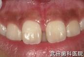 府中市の歯医者 口腔外科専門医 武田歯科の口腔外科事例【上唇小帯過長症】術後