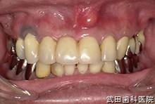 府中市の歯医者 口腔外科専門医 武田歯科の口腔外科事例【歯肉膿瘍】術前