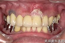 府中市の歯医者 口腔外科専門医 武田歯科の口腔外科事例【歯肉腫瘍】術後