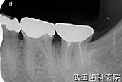 府中市の歯医者 口腔外科専門医 武田歯科の口腔外科事例【歯牙移植】経過