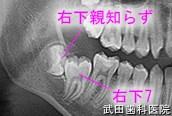 府中市の歯医者 口腔外科専門医 武田歯科の口腔外科事例【右下7開窓療法】治療前
