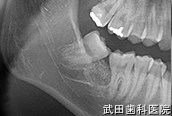 府中市の歯医者 口腔外科専門医 武田歯科の口腔外科事例【右下7埋伏歯抜歯】治療後