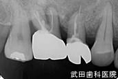 府中市の歯医者 武田歯科のインプラント事例【左上6,5抜歯後埋入】治療前