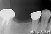 府中市の歯医者 武田歯科のインプラント事例【右下6インプラント埋入】治療前