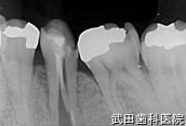 府中市の歯医者 口腔外科専門医 武田歯科のインプラント事例【左下5抜歯後埋入】治療前
