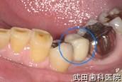 府中市の歯医者 口腔外科専門医 武田歯科のインプラント事例【左下5抜歯後埋入】治療後