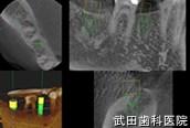 府中市の歯医者 武田歯科のインプラント事例【右下7,5インプラント埋入】シミュレーション画像