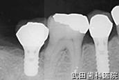 府中市の歯医者 武田歯科のインプラント事例【右下7,5インプラント埋入】上部構造セット後