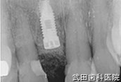 府中市の歯医者 口腔外科専門医 武田歯科のインプラント事例【右上1抜歯即時埋入】埋入後