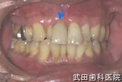 府中市の歯医者 武田歯科のインプラント事例【右上1抜歯即時埋入】治療後