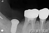 府中市の歯医者 口腔外科専門医 武田歯科のインプラント事例【右下7抜歯後埋入】埋入後