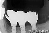 府中市の歯医者 武田歯科のインプラント事例【左上4,5,6インプラント埋入】治療後