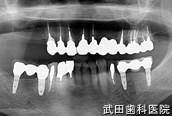 府中市の歯医者 武田歯科のインプラント事例【右上7インプラント埋入】治療前