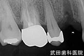 府中市の歯医者 武田歯科のインプラント事例【右上4インプラント埋入】治療前