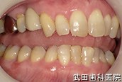 府中市の歯医者 武田歯科のインプラント事例【右上4インプラント埋入】治療後