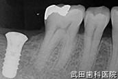府中市の歯医者 武田歯科のインプラント事例【右下7インプラント埋入】埋入後