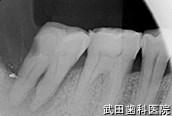 府中市の歯医者 口腔外科専門医 武田歯科のインプラント事例【右下7抜歯即時埋入+自家骨移植】治療前