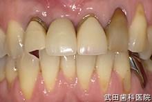 府中市の歯医者 武田歯科のインプラント事例【右上1抜歯即時埋入】上部構造セット後