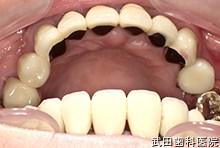 府中市の歯医者 武田歯科のインプラント事例【左上4インプラント埋入】上部構造セット後
