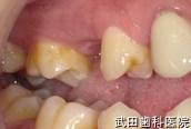 府中市の歯医者 武田歯科のインプラント事例【右上5インプラント埋入】術前
