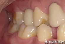 府中市の歯医者 武田歯科のインプラント事例【右上5インプラント埋入】上部構造セット後