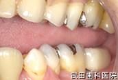 府中市の歯医者 武田歯科のインプラント事例【左下7インプラント埋入】治療後