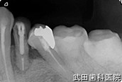 府中市の歯医者 武田歯科のインプラント事例【左下4インプラント埋入】術前