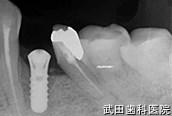 府中市の歯医者 武田歯科のインプラント事例【左下4インプラント埋入】埋入後