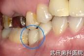 府中市の歯医者 口腔外科専門医 武田歯科のインプラント事例【右下5インプラント埋入】上部構造セット後