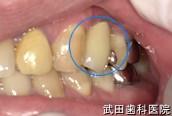 府中市の歯医者 武田歯科のインプラント事例【右下5インプラント埋入】治療後