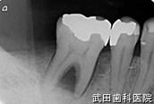 府中市の歯医者 武田歯科のインプラント事例【右下6、7抜歯即時埋入】治療前