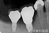 府中市の歯医者 武田歯科のインプラント事例【右下6、7抜歯即時埋入】上部構造セット後