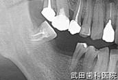 府中市の歯医者 口腔外科専門医 武田歯科のインプラント事例【右下6インプラント埋入】治療前