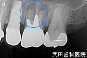 府中市の歯医者 口腔外科専門医 武田歯科のインプラント事例【左上6抜歯後埋入】治療前