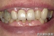 府中市の歯医者 武田歯科の審美歯科事例【右上3審美修復】治療前