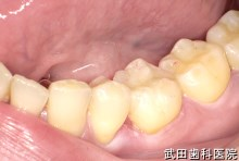 府中市の歯医者 武田歯科の審美歯科事例【左下6審美修復】(E-maxインレー)治療後