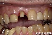 府中市の歯医者 武田歯科の審美歯科事例【左下7・8審美修復】(E-maxインレー)治療前