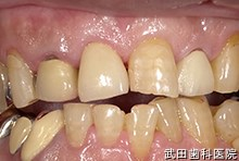 府中市の歯医者 武田歯科の審美歯科事例【左下7・8審美修復】(E-maxインレー)治療後